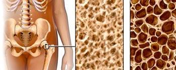 Osteoporoza klimakterium